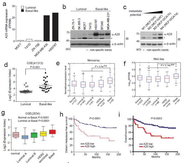 생명과학과 박석희 교수 연구팀, 난치성 삼중유방암의 새로운 암전이(癌轉移) 기전 규명